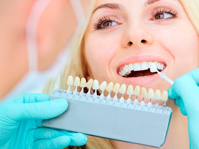Esthetische Tandheelkunde 13