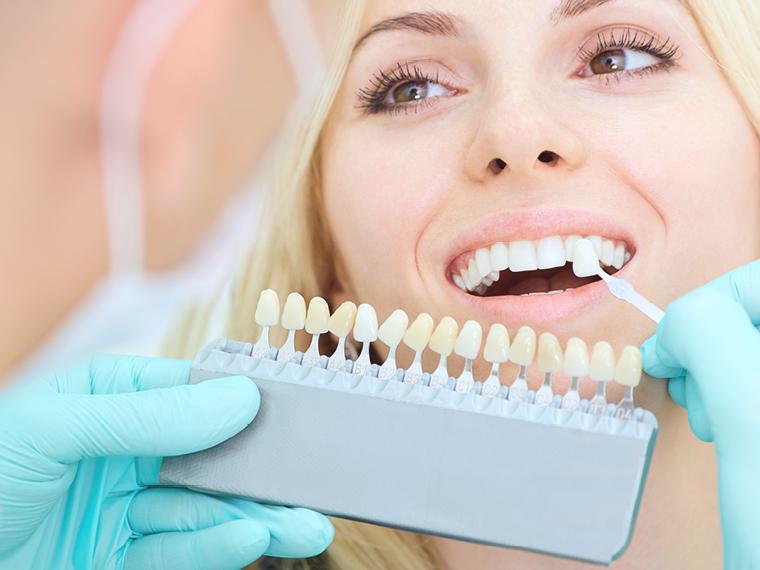 Opleiding Esthetische Tandheelkunde