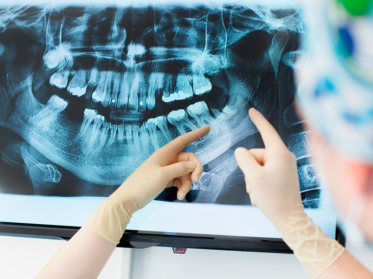 Restauratieve tandheelkunde 13