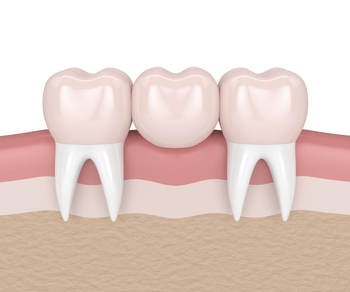 Brug of implantaat: werk in uitvoering 1